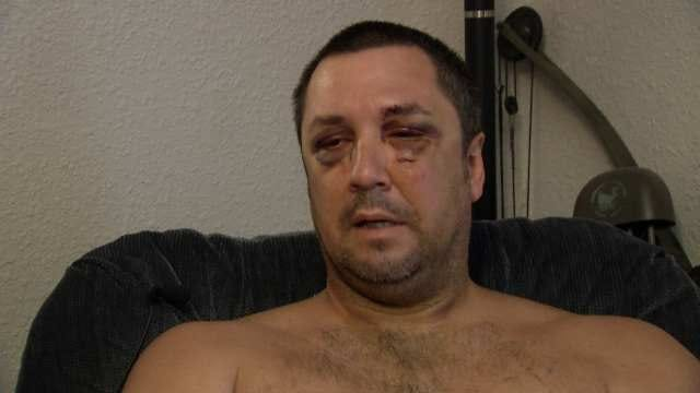 Man Says He Was Beaten, Left For Dead By OKCPD Officers On Illinois River