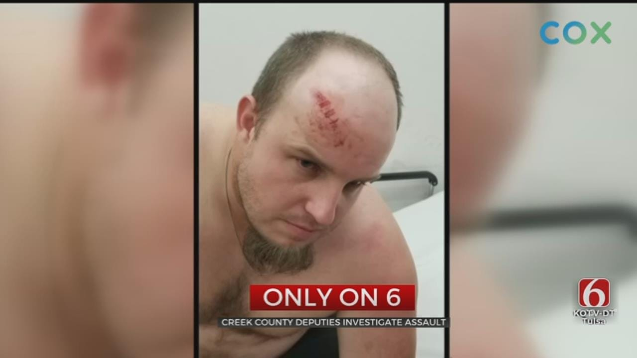 Creek County Man Seriously Hurt After Being Beaten With Crowbars
