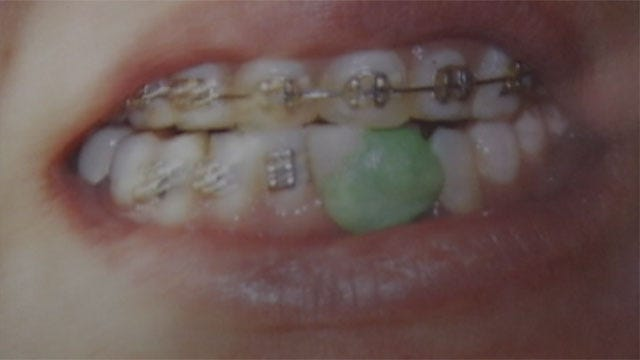 Authorities Warn Of Fake Dentist Botching Dental Work In OKC