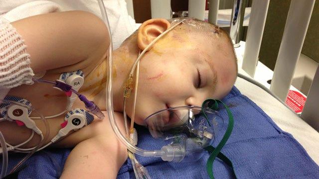 Donation Fund Set Up For OKC Boy Undergoing 22nd Brain Surgery