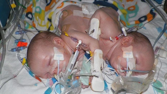 Guthrie Family Shares Conjoined Twins' Journey To Beat The Odds